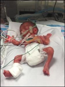 27 week premature baby in NICU