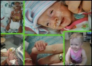25 week preemie girl