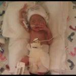 Prematurity Voices: Kristen's Story