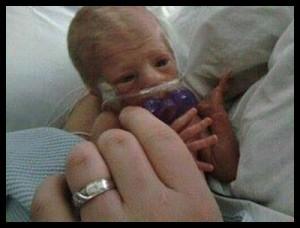 31 week preemie