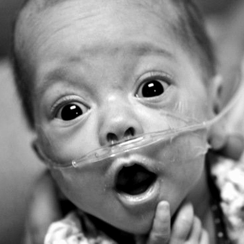 Happy preemie baby - donate to Graham's Foundation