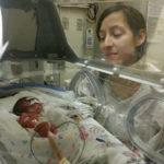 Pre-eclampsia and Premature Birth